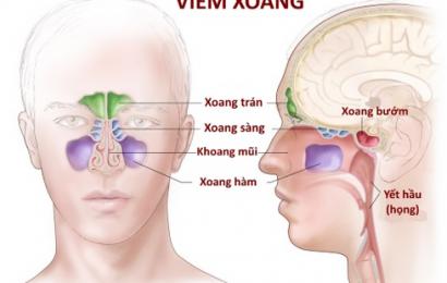 Những dấu hiệu nhận biết của bệnh viêm xoang