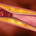 Bệnh xơ vữa động mạch là gì?
